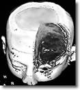 radioterapia Glioma 3D