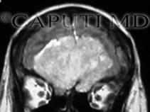meningioma olfattorio