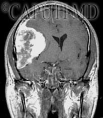 meningioma pterionale