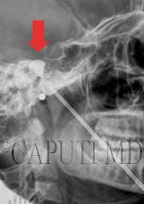 nevralgia del trigemino o trigeminale