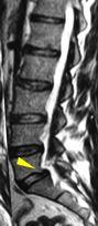 scivolamento vertebrale tra di L5 su S1