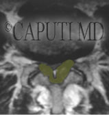 stenosi lombare legamenti ipertrofici