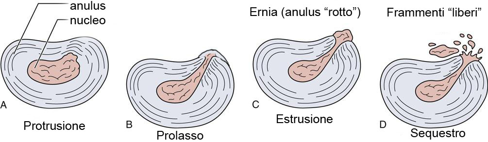 Rottura dell'anulus ed ernia